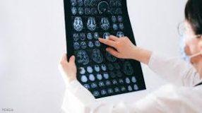 """ماذا تعرف عن """"المادة البيضاء"""" في الدماغ"""