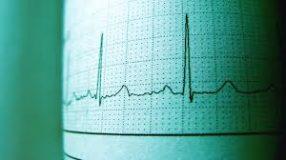 الكشف عما يساعد في تحسين صحة القلب والأوعية الدموية لزيادة طول العمر